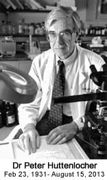 Dr-Peter-Huttenlocher